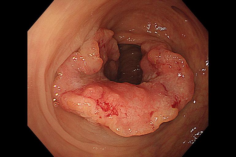 大腸がんは血便・便潜血陽性の原因