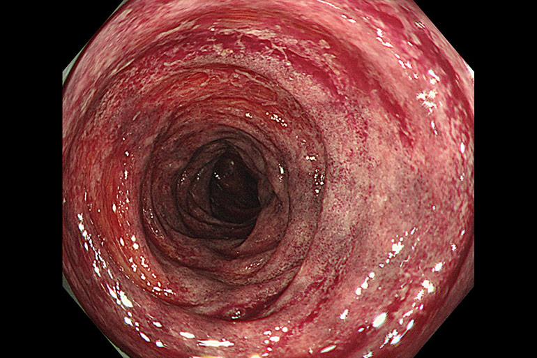 虚血性大腸炎は血便・便潜血陽性の原因