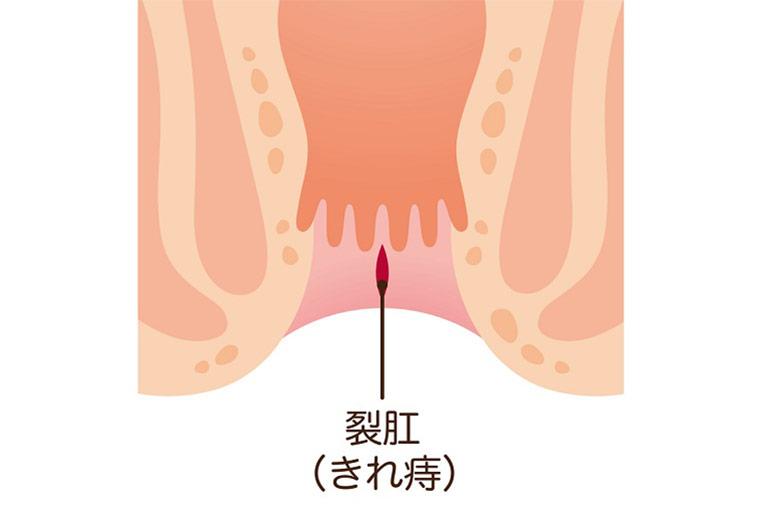 切れ痔は血便・便潜血陽性の原因