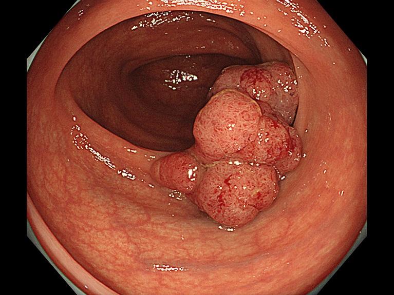 大腸がんでは便秘と下痢を繰り返すことがあります。