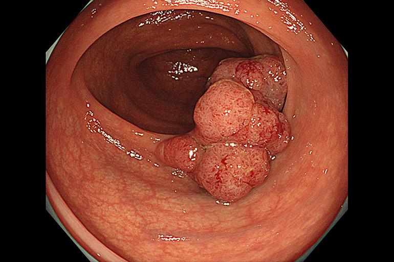 早期大腸がんについて