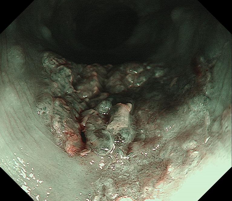 深い層まで及んでいる進行食道がん(NBI画像)